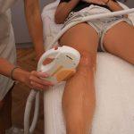 laserska epilacija iskustva (2)